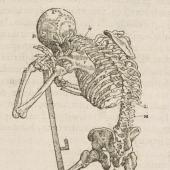 Paré's skeleton